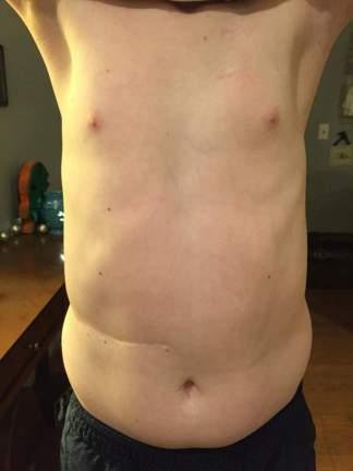 scars1